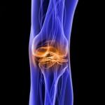 Боль коленного сустава, стимулируя на велосипеде